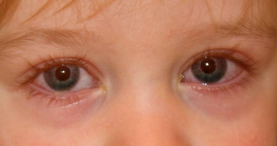 Аллергический конъюнктивит у детей: причины, симптомы, лечение глаз, чем их мазать, фото, какими глазными каплями лечить ребенка