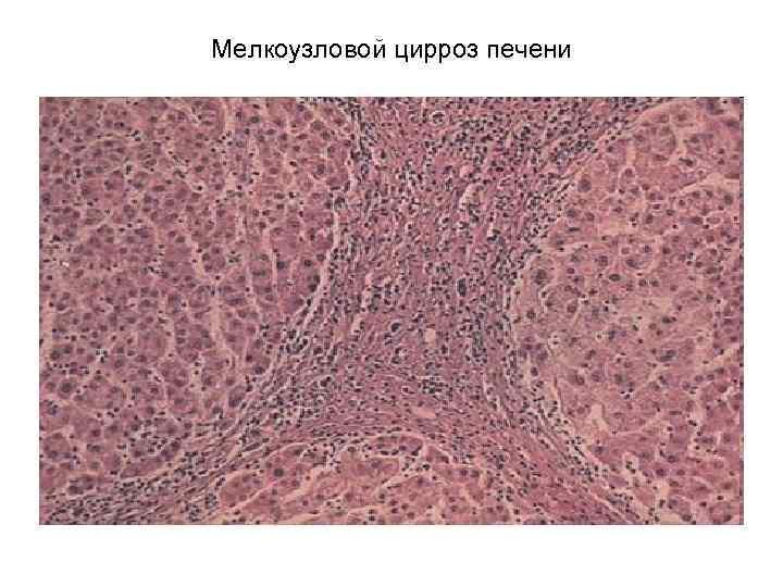 Крупноузловой (макронодулярный) цирроз печени: причины, симптомы, лечение и прогноз