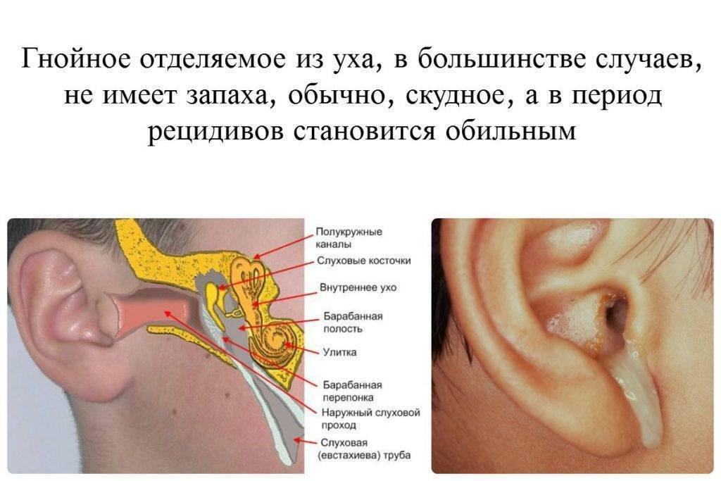 Причины неприятного запаха из уха у ребёнка