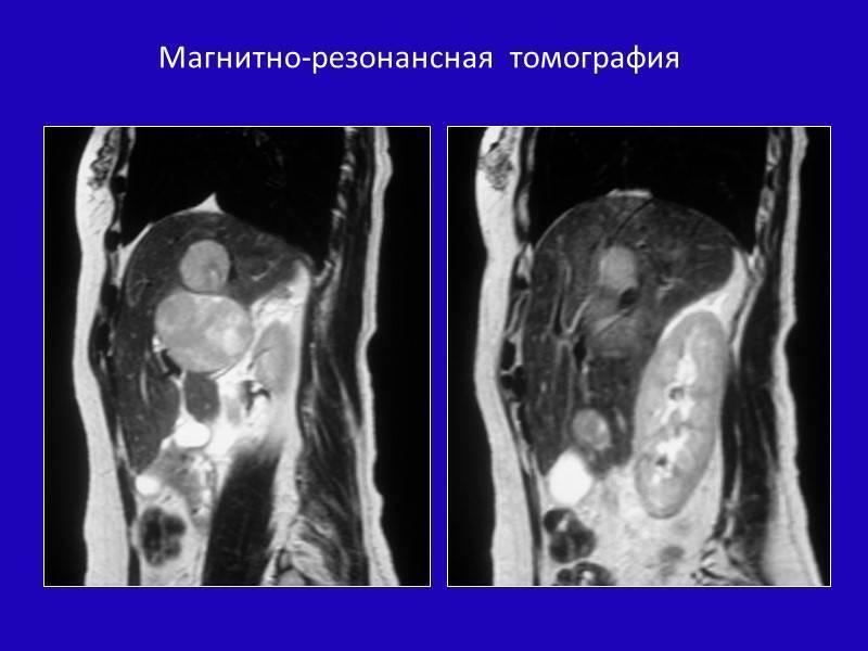 Холангиокарцинома — википедия переиздание // wiki 2