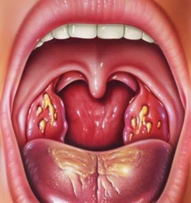 Фолликулярная ангина у детей и взрослых. лечение и профилактика ангины
