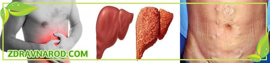 От чего может быть цирроз печени? причины и методы профилактики