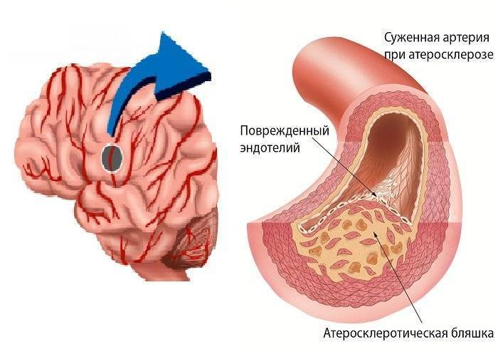 сколько живут с атеросклерозом головного мозга