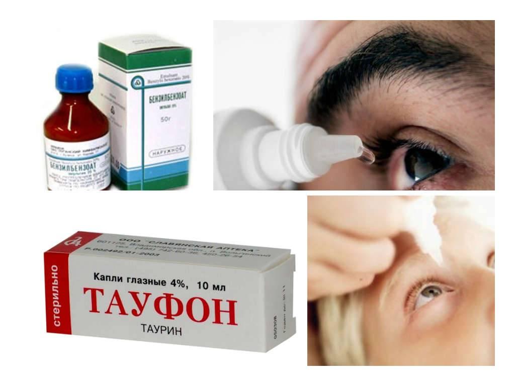 Демодекоз глаз (клещ демодекс на веках): симптомы и лечение