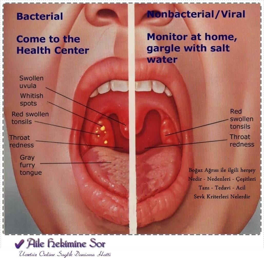 лечение хронического тонзиллита доктор комаровский