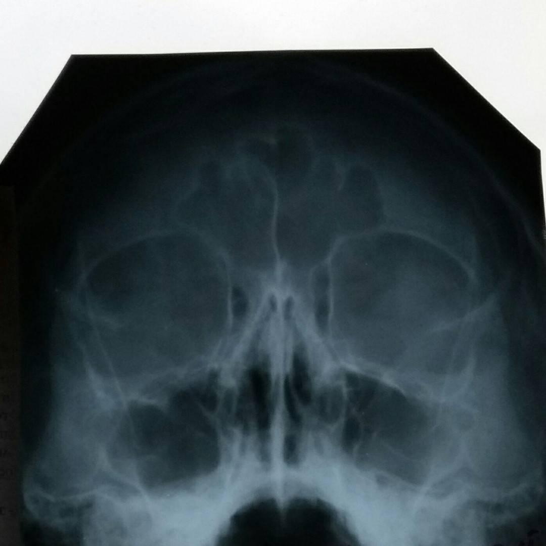 Стекает по задней стенке горла. чем лечить?