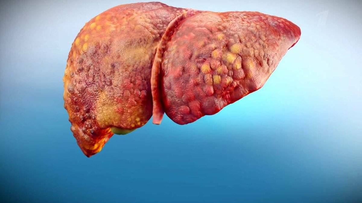 осложнения хронического гепатита