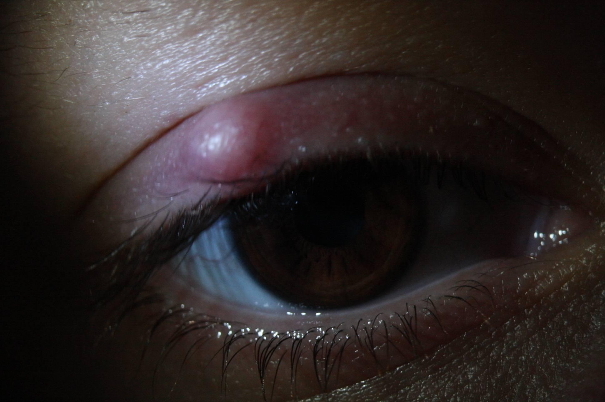 рак глаз у детей симптомы