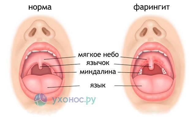 аллергический фарингит у взрослых