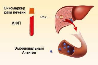 Как определить рак печени: анализы крови при онкологии, мрт, кт, узи и лапароскопия печени