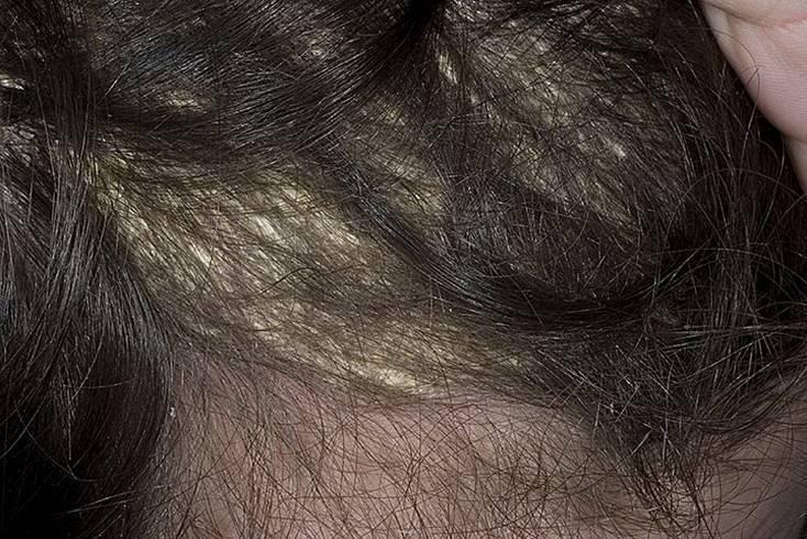 Различие признаков себорейного дерматита на коже головы и лица