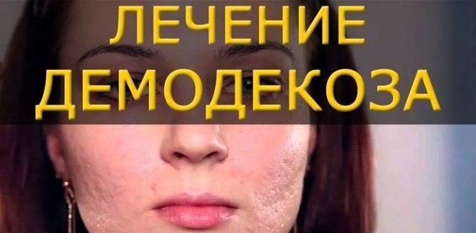 Подкожный клещ на лице: причины, начальная стадия, симптомы, лечение