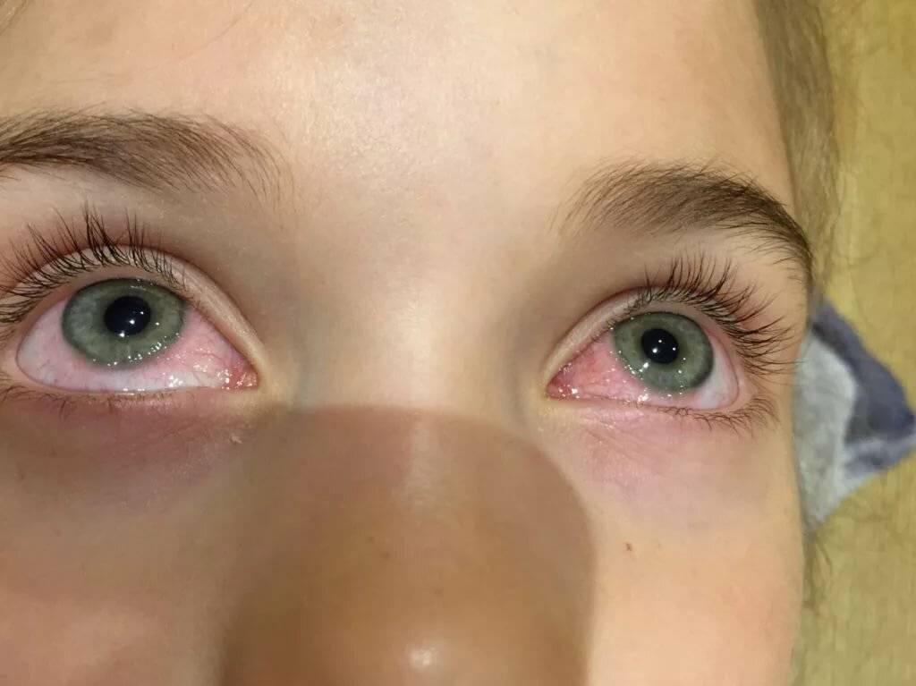 что делать если глаз покраснел и слезится