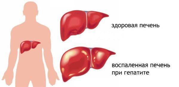При гепатите а можно курить