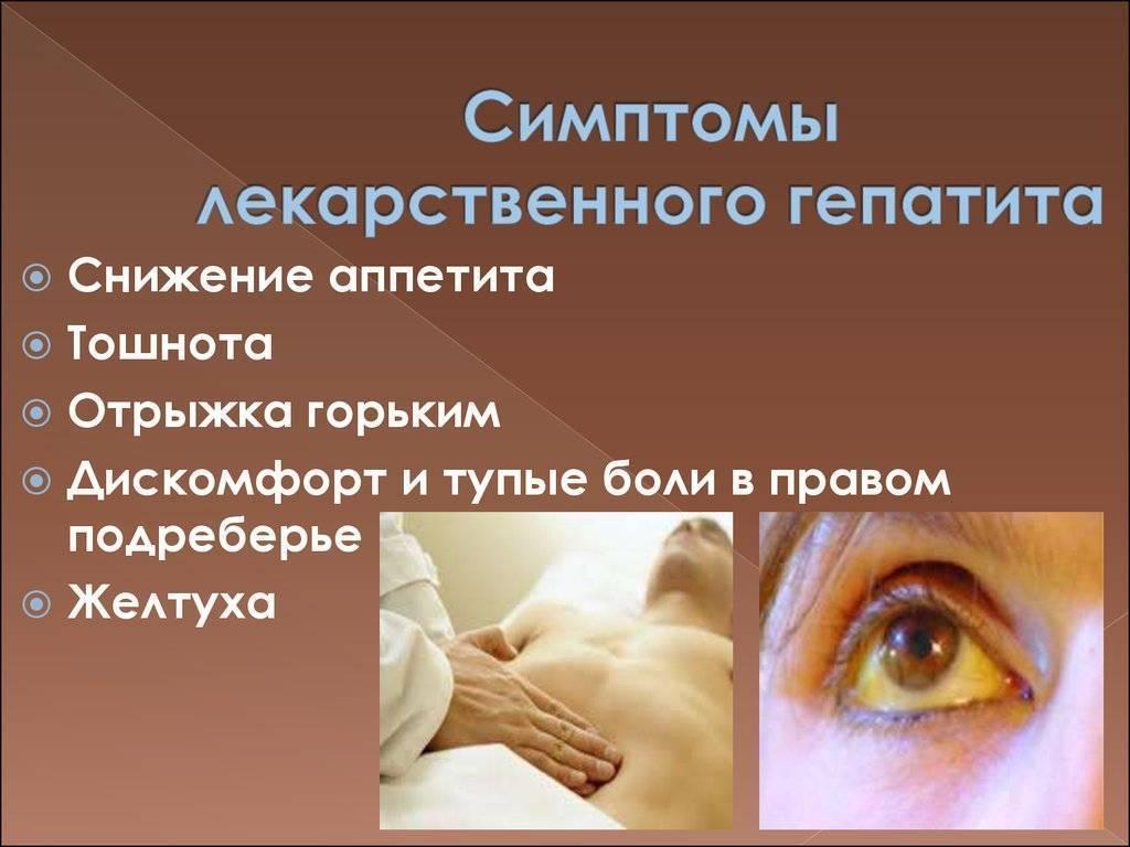 лекарственный гепатит симптомы лечение