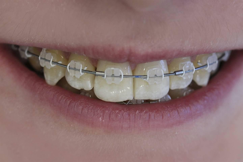 Металлические брекеты – цены на установку металлической брекет системы в москве | сеть стоматологических клиник «президент»