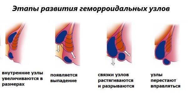 Надо ли вправлять геморройные шишки