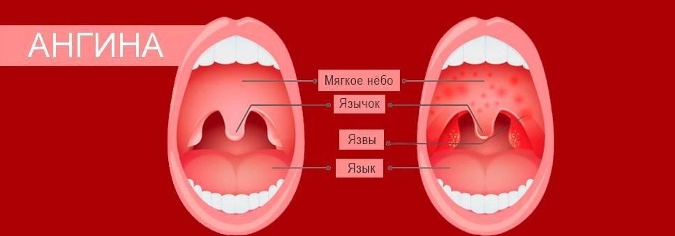 болит горло больше месяца без температуры