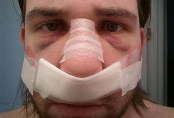 Перелом носа со смещением и без смещения