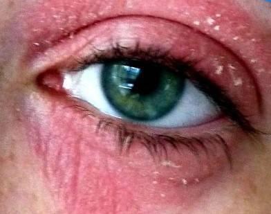 Кандидоз глаз - что это такое, симптомы, лечение