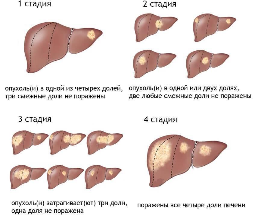 рак печени прогноз