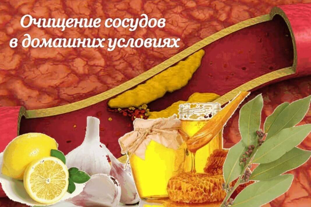 Атеросклероз – народное лечение атеросклероза сосудов – как лечить сосуды