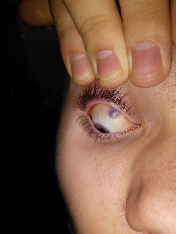 Чирей на глазу: симптомы и признаки, осложнения