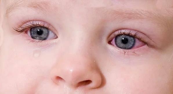 доктор комаровский конъюнктивит у ребенка