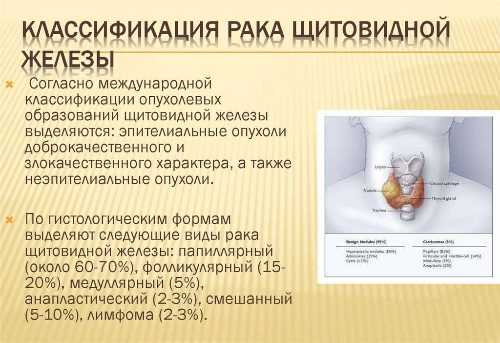 Как определить симптомы рака щитовидной железы у женщин
