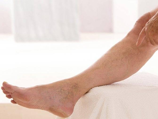 Атеросклероз. причины, факторы риска, осложнения и профилактика болезни.