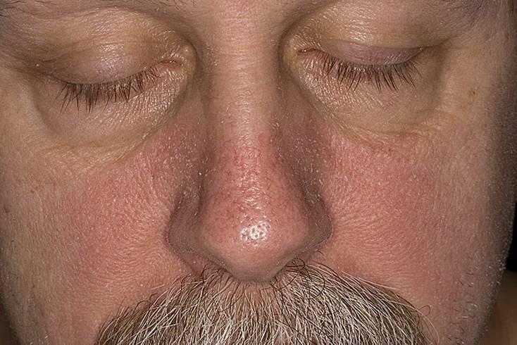 средства от себорейного дерматита на лице