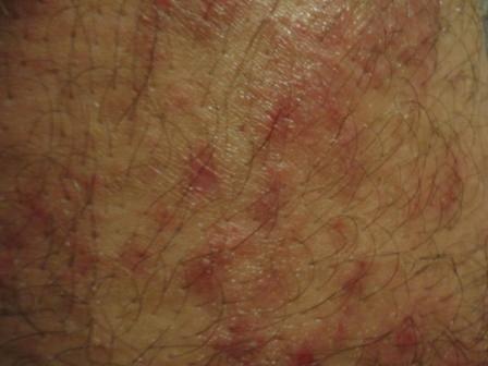 Псориаз в паху: признаки заболевания и особенности лечения