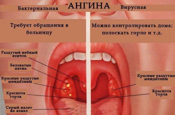 отек горла симптомы и лечение у ребенка