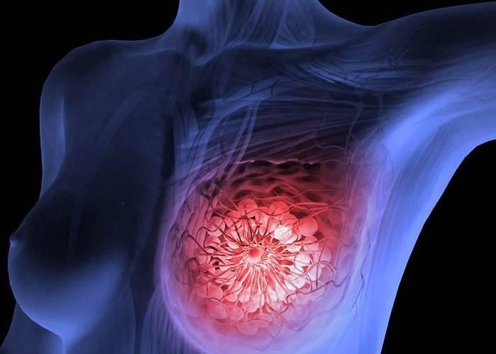 масталгия боль в молочной железе лечение