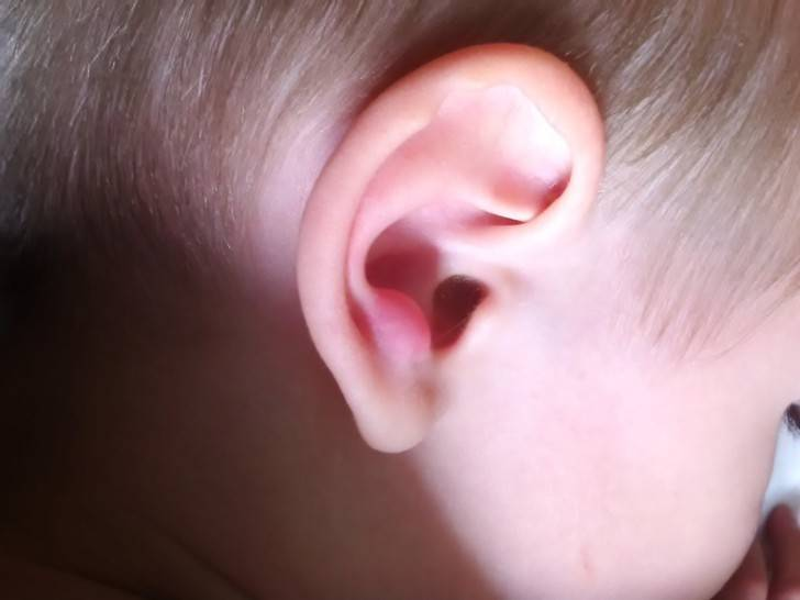 заболевания ушной раковины человека