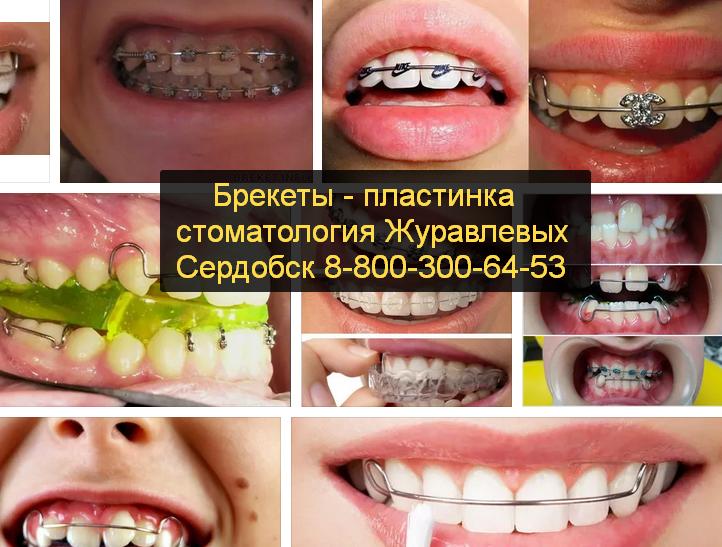 Пластина или брекеты - запись пользователя оксана (pypsiki04) в сообществе здоровье - от трех до шести лет в категории стоматология и ортодонтия - babyblog.ru