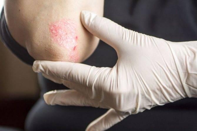 лечение псориаза на локтях