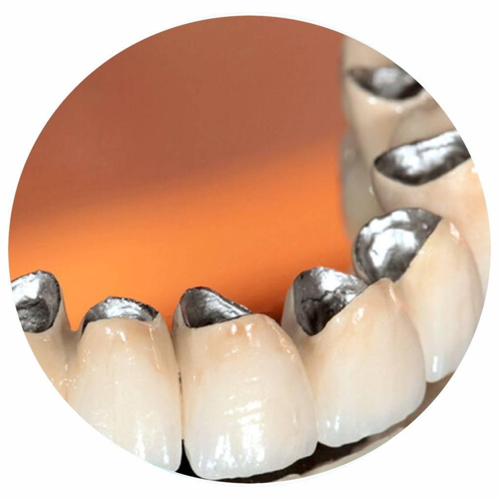 Стоит ли ставить коронки на передние зубы?