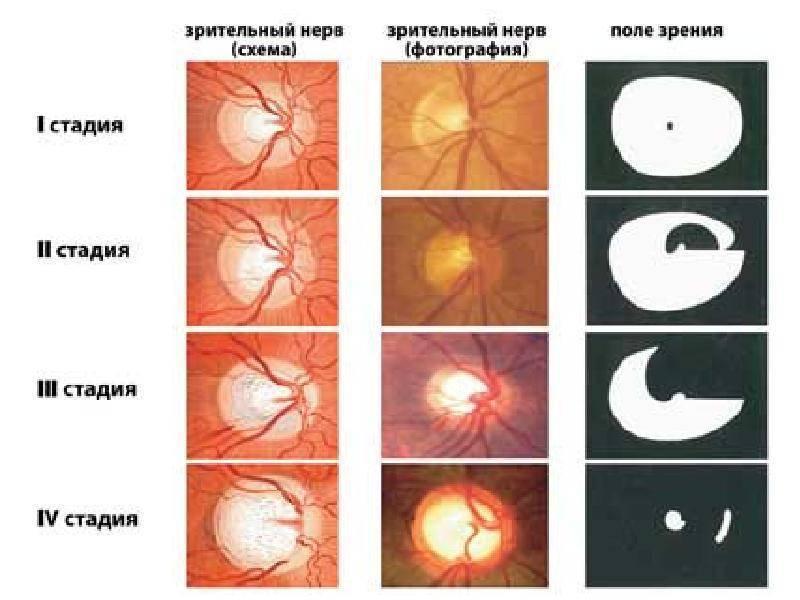 Диетическое питание при глаукоме и катаракте