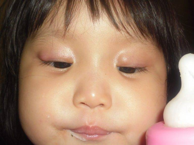 халязион на глазу у ребенка