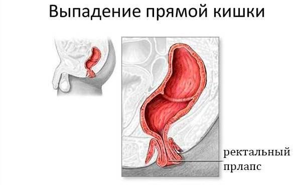 лечение геморроя выпадающие узлы