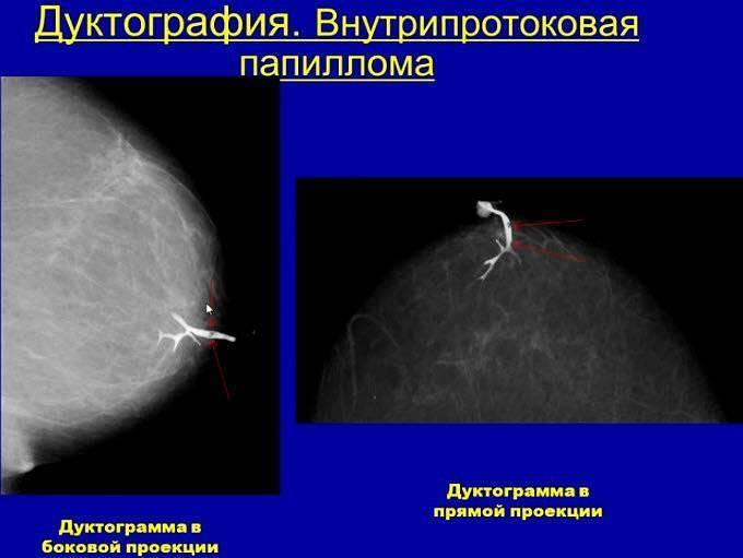 операция по удалению внутрипротоковой папилломы молочной железы