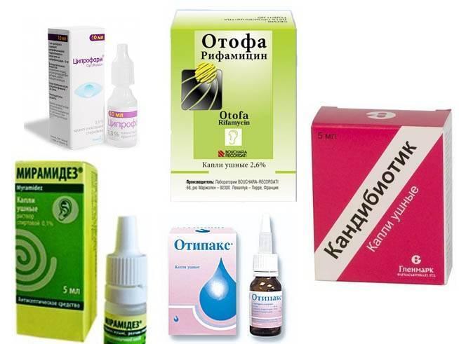 Лечение отита у взрослых: когда необходимы антибиотики