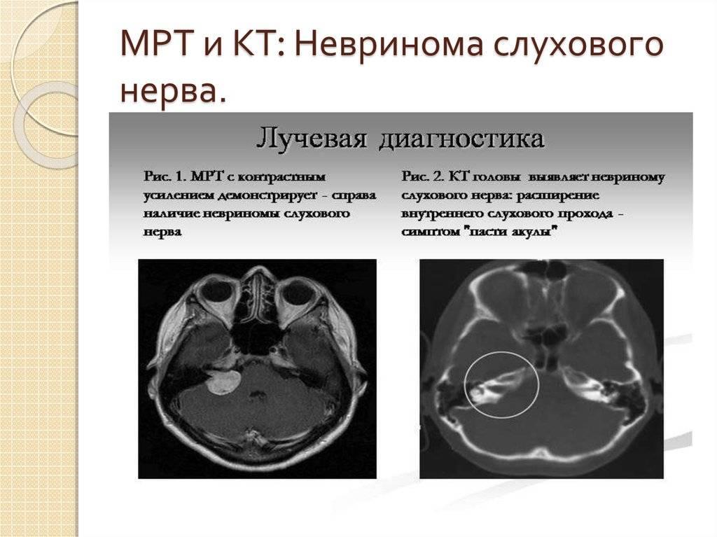 Неврит слухового нерва: причины, признаки, как лечить