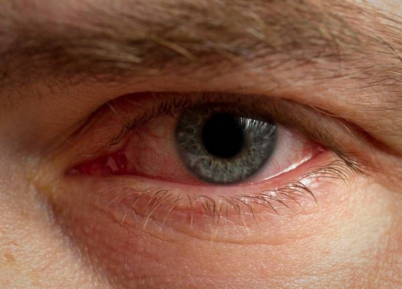 Блефарит век: внешние признаки и лечение
