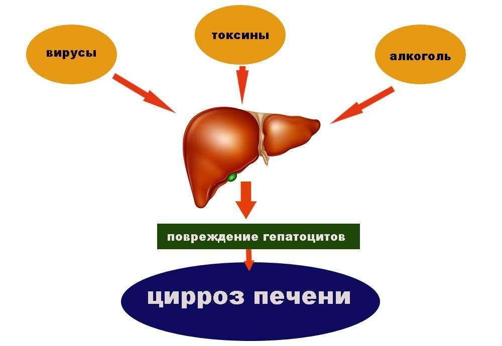 Алкогольный цирроз печени: симптомы, признаки, лечение и сколько с ним живут