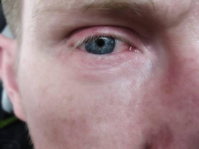 Красные точки вокруг глаз - красные точки под глазами - запись пользователя анна (katushka1301) в сообществе дети от шести и старше в категории здоровье - babyblog.ru