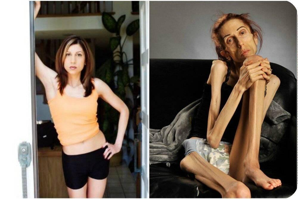 Методы лечения анорексии. можно ли лечить анорексию дома?