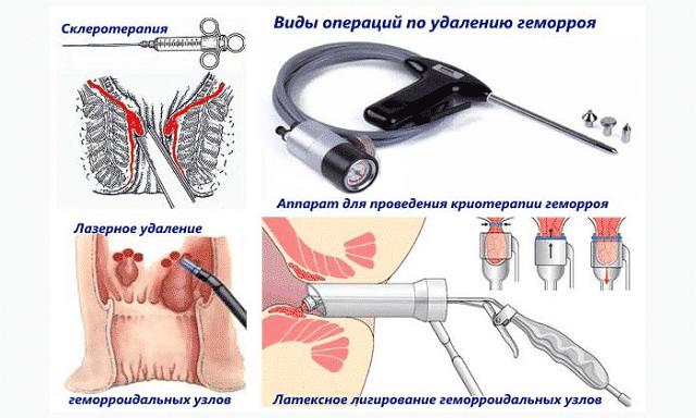 После операции геморроя: послеоперационный период лечения, отзывы