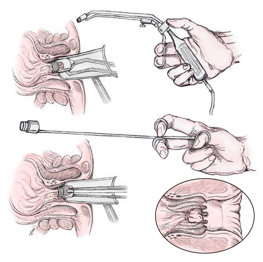 лечение геморроя кольцами